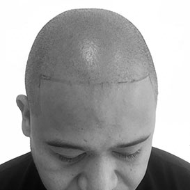 Before SMP Hair Transplantation at Medihair