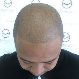 After SMP Hair Transplantation at Medihair