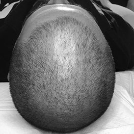 Before Medihair Hair Loss Treatment