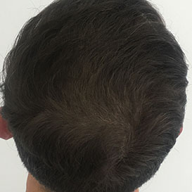 Medihair Hair Transplant After Result