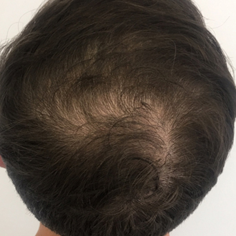SMP Hair Transplant Before and After